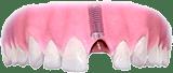 implantologie-2