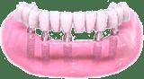 implantologie-alle-3