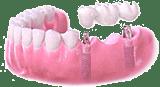 implantologie-mehrere-3